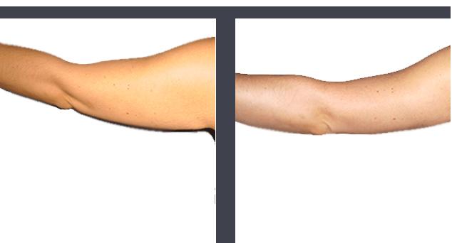 Lifting bras - Chirurgie esthetique Tunisie
