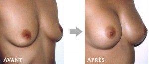 augmentation mammaire maroc prix