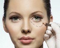 chirurgie esthetique tunisie: chirurgie visage