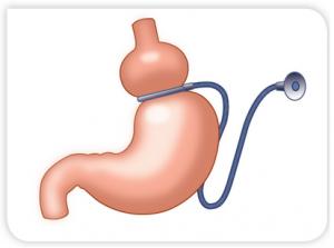aneau-gastrique-chirurgie-obesite